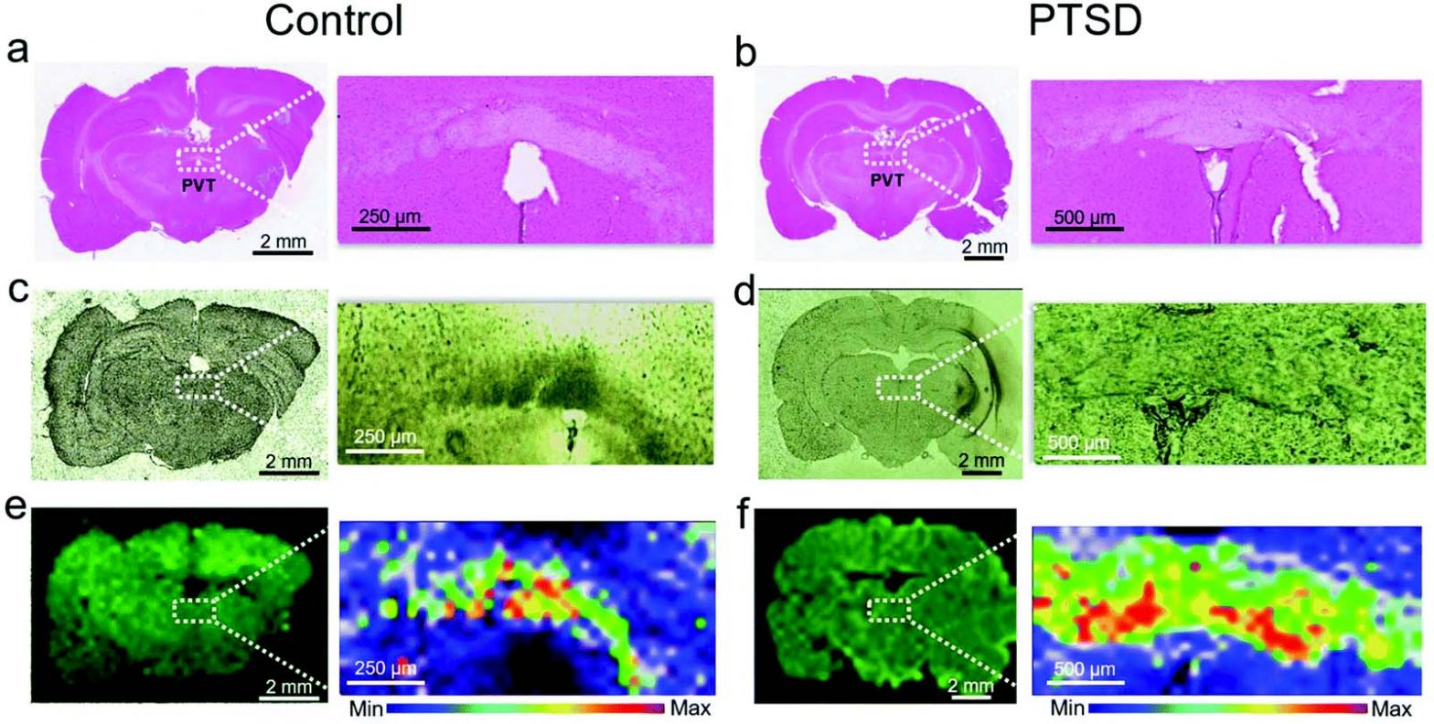 Label-free lipidome study of paraventricular thalamic nucleus (PVT) of rat brain with post-traumatic stress injury by Raman imaging